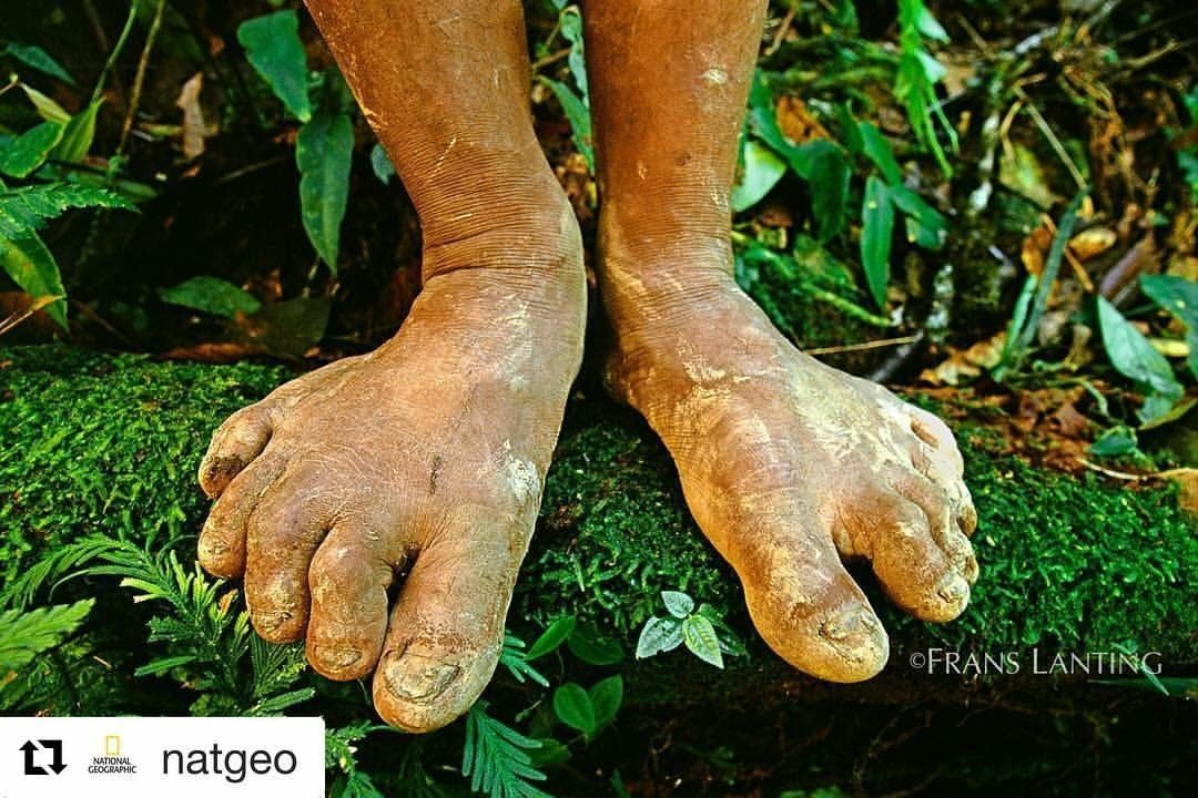 picture of natural feet